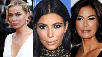 Les stars et la chirurgie esthétique, pour le meilleur... et pour le pire ! (PHOTOS)