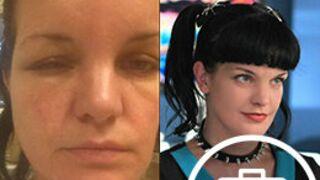 Pauley Perrette hospitalisée et défigurée après une grave allergie (PHOTOS)