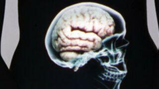 Programme TV : On a aimé... Le ventre, notre deuxième cerveau (Arte)