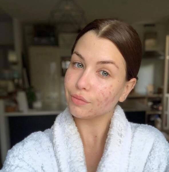 … ou acné non masqué.