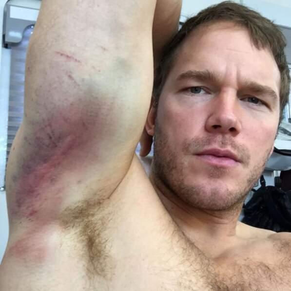 Ce qui n'est pas le cas de Chris Pratt qui, lui, s'est vraiment fait mal sur le tournage du film Passengers.