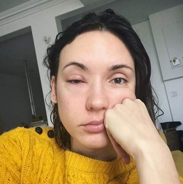 2018 en met déjà plein la vue à Natoo, qui est victime d'une conjonctivite