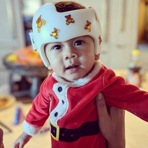 Miles est un bébé plein de vie, mais comme la plupart des bébés à la naissance, il a un aplatissement du crâne...
