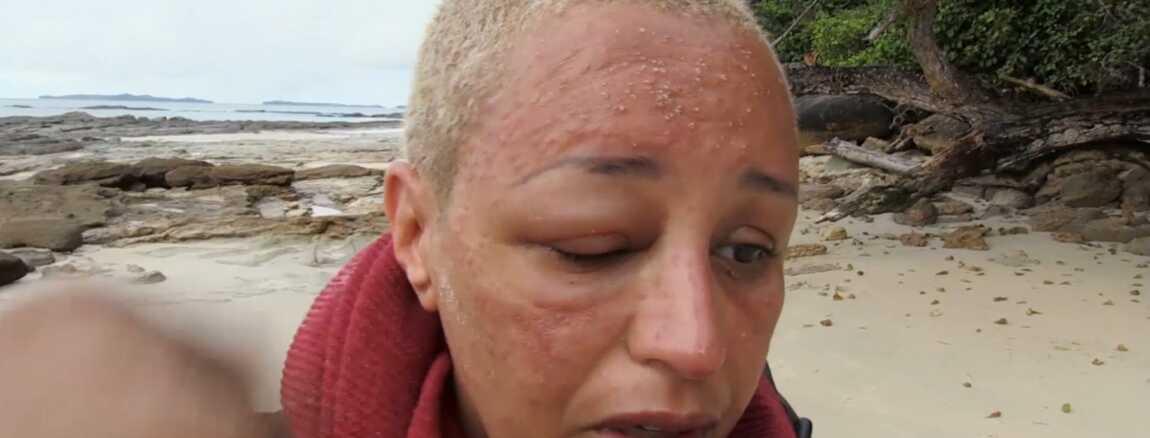 Devoree Par Les Moustiques Laam Defiguree Dans The Island Celebrites Les Nouvelles Images Chocs Video