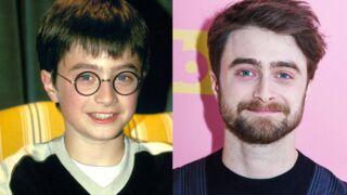 Bon anniversaire Daniel Radcliffe (31 ans) ! Le jeune Harry Potter a bien changé (PHOTOS)