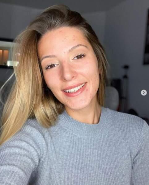"""Et Emma Cakecup a osé le selfie sans maquillage (sauf sur les yeux) pour montrer qu'elle est une fille """"normale""""."""