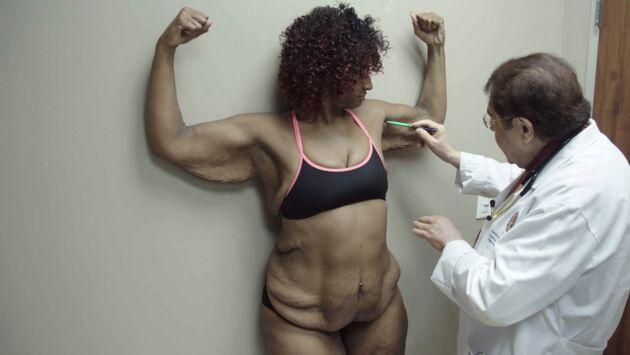 New Skin : chirurgie de l'extrême