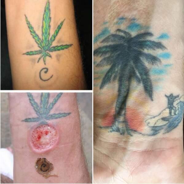 """Cauet avait convaincu Steve-O de se faire tatouer son initiale """"C"""" sur le poignet lors d'une émission..."""