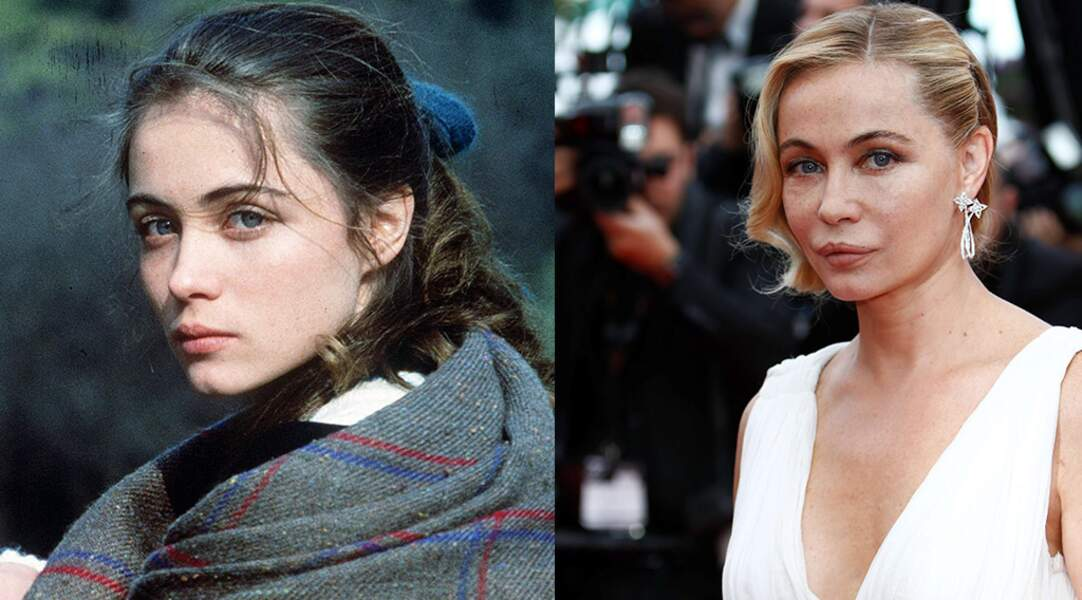 """L'actrice Emmanuelle Béart, contre la chirurgie esthétique depuis son intervention à la bouche, """"loupée""""."""