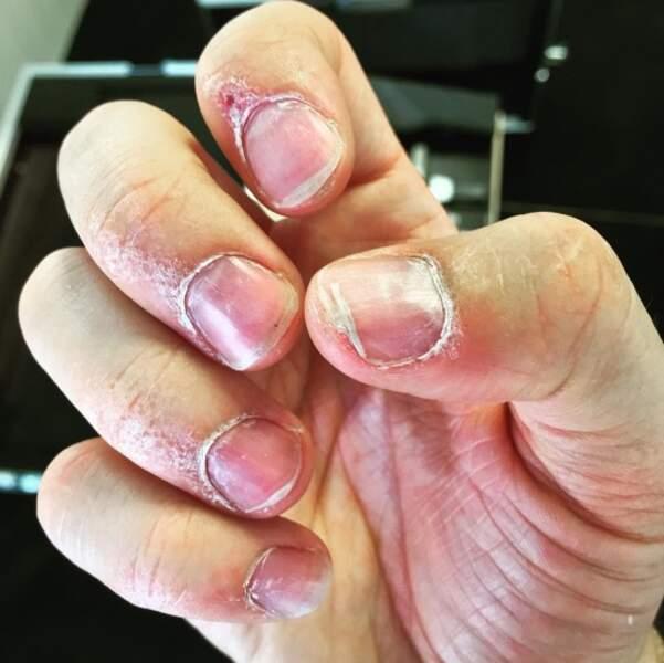 Vous voulez avoir peur ? Voici les ongles de Vianney après une tournée.