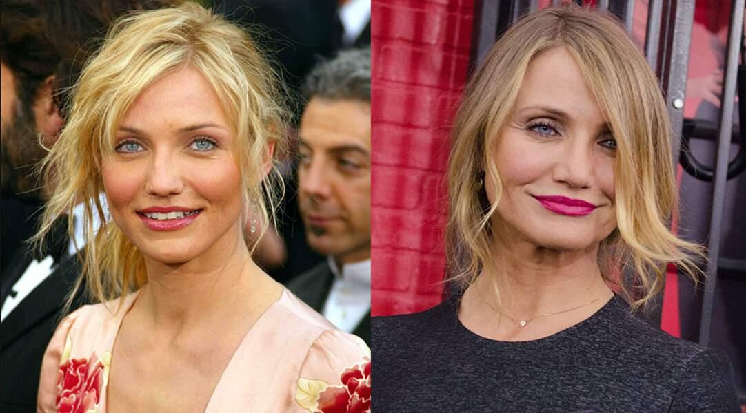 L'actrice Cameron Diaz, qui a avoué regretter son recours au botox.