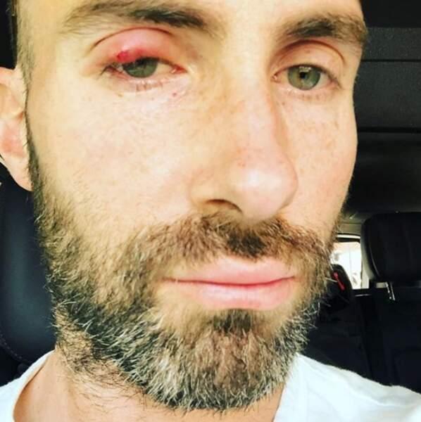 On espère franchement que vous allez mieux qu'Adam Levine.