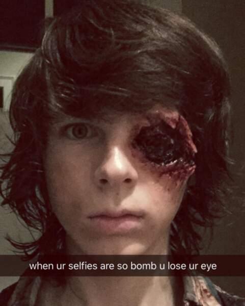 """""""Quand tes selfies sont tellement de la bombe que tu en perds un oeil""""... Oups, spoiler !"""