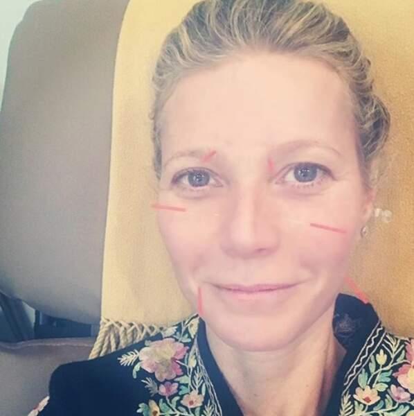 Gwyneth Paltrow a fait hurler de terreur tous les phobiques des aiguilles en un selfie.