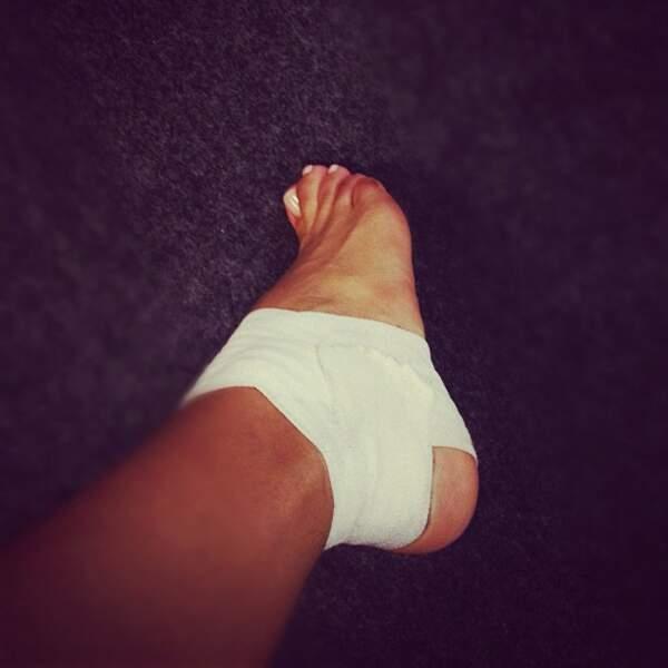 Shy'm s'est fait mal au pied...