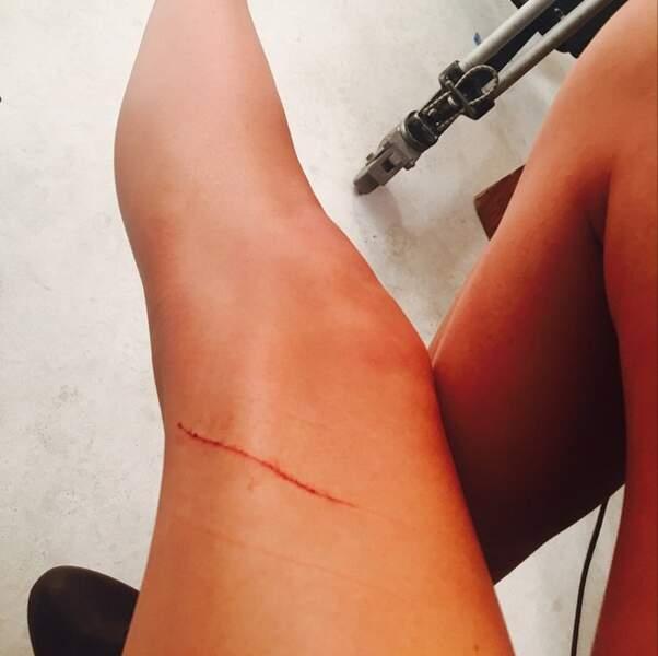 Ouch ! Le chat de Taylor Swift n'a pas été très sympa avec sa maîtresse.