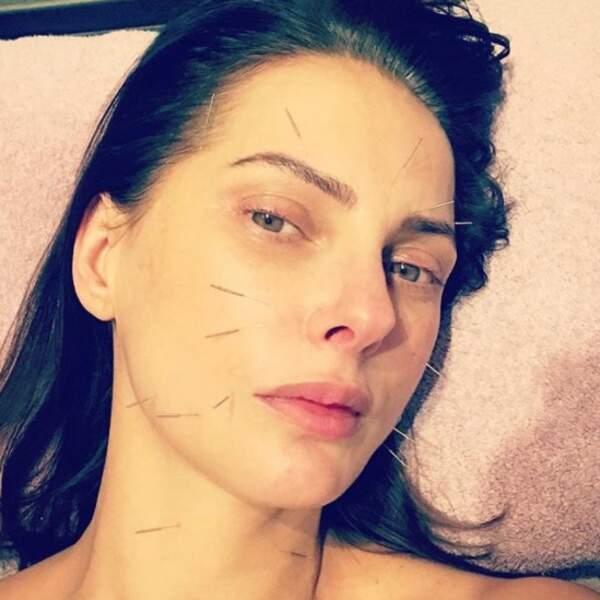 L'astuce de Frédérique Bel pour avoir un joli teint ? L'acupuncture.