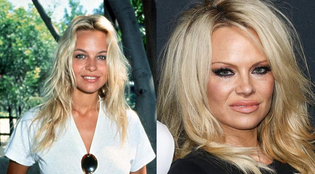 Tout comme Pamela Anderson...
