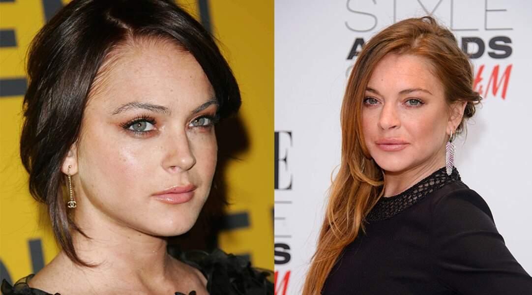 Elle aussi s'est (entre autres) fait refaire la bouche : Lindsay Lohan.
