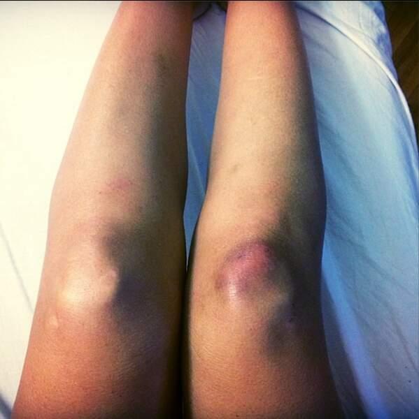 Mais se fait aussi très mal. Aïe, aïe, voilà ses pauvres genoux traumatisés par Jean-Marc Généreux