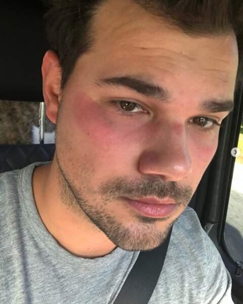 Et attention quand vous essayez de nouveaux produits de beauté ! Pauvre Taylor Lautner.