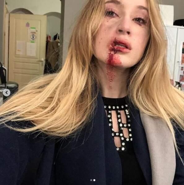 Hortense Rochemont (Catherine Davydzenka) a été blessée à la bouche pendant l'explosion