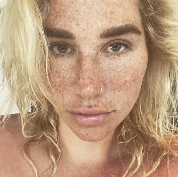 On adore les taches de rousseur de Kesha.